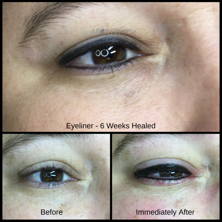 Permanent Makeup Eyeliner Results About Face And Body