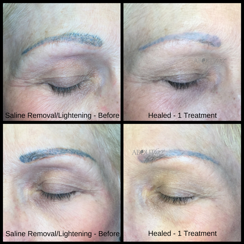Tattoo Removal and Lightening • About Face and Body